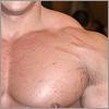 Szépségvarázs - Bőrrepedések, Striák, Terhességi csíkok kezelése