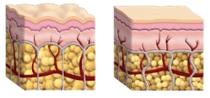 Cellulitisz / Narancsbőr és az Egészséges bőr