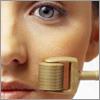 Szépségvarázs - Mezoterápia, Derma-roller